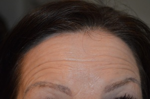 Anti Wrinkle Treatment Before
