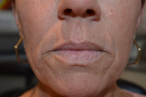 Hallcraig Dental Upper lip with smokers lines - dermal filler