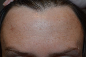 Anti Wrinkle Treatment Hallcraig Dental CAre