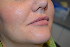 Lip Fillers from Hallcraig Dental Care