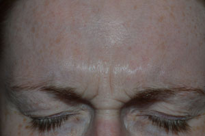 Glabella Beauty Treatment Hall craig Dental Care