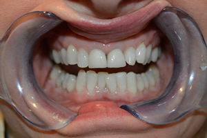 Teeth Whitening Airdrie Hallcraig Dental Care