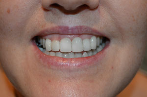 Veneers Airdrie Hallcraig Dental Care